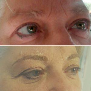 dermopigmentazione sopracciglia alberta