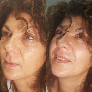 dermopigmentazione contorno labbra