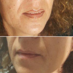 dermogimentazione-labbra